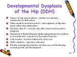 developmental dysplasia of the hip ddh