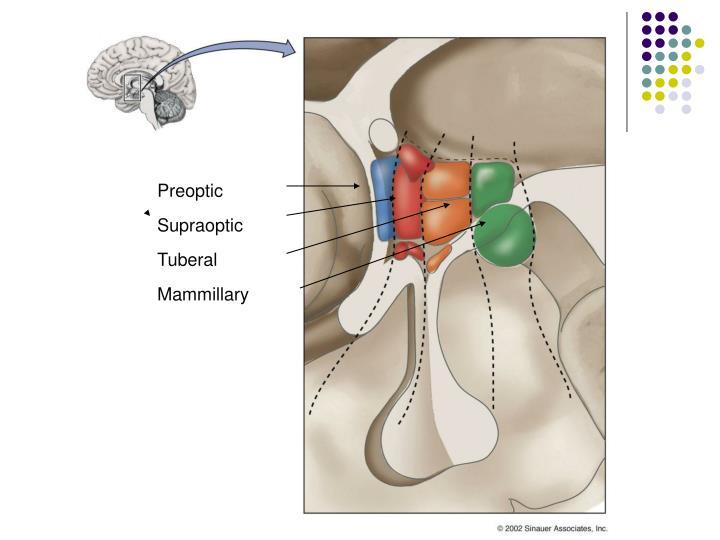 Preoptic