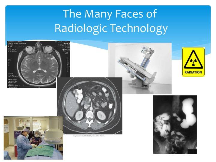 the many faces of radiologic technology n.