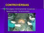 controv rsias