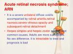 acute retinal necrosis syndrome arn