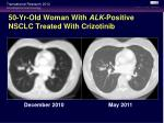 50 yr old woman with alk positive nsclc treated with crizotinib