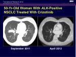 50 yr old woman with alk positive nsclc treated with crizotinib1