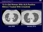 72 yr old woman with alk positive nsclc treated with crizotinib