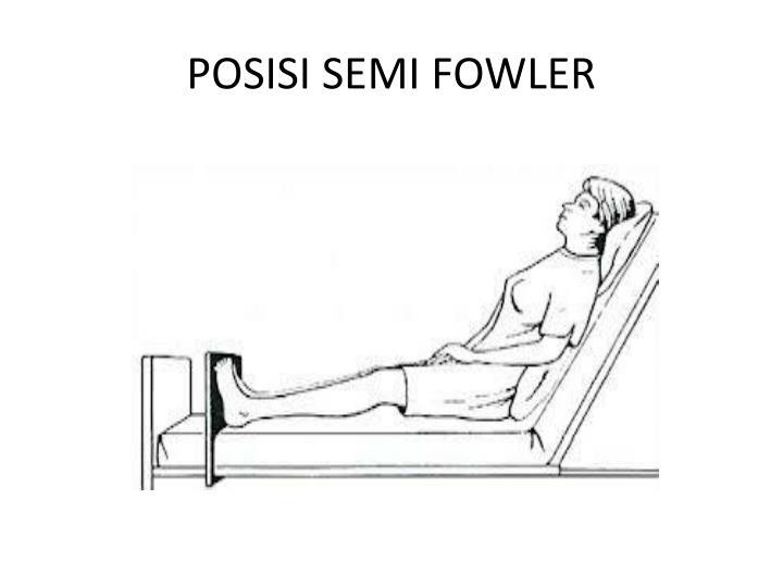 POSISI SEMI FOWLER