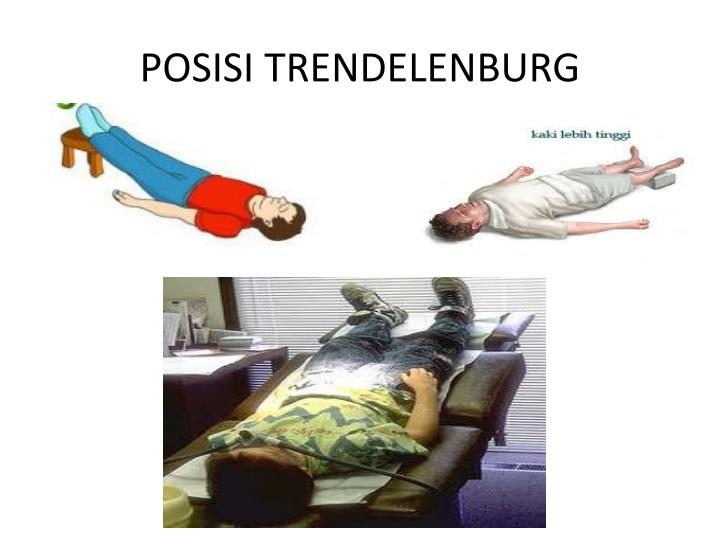 POSISI TRENDELENBURG