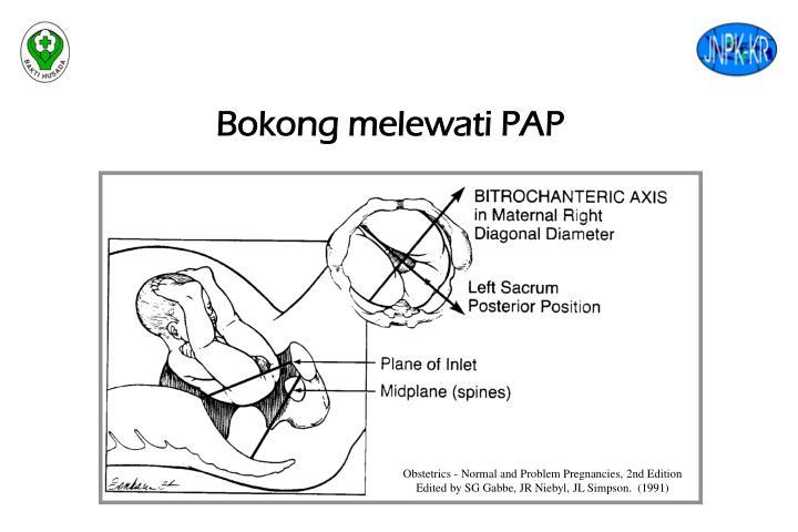 Bokong melewati PAP
