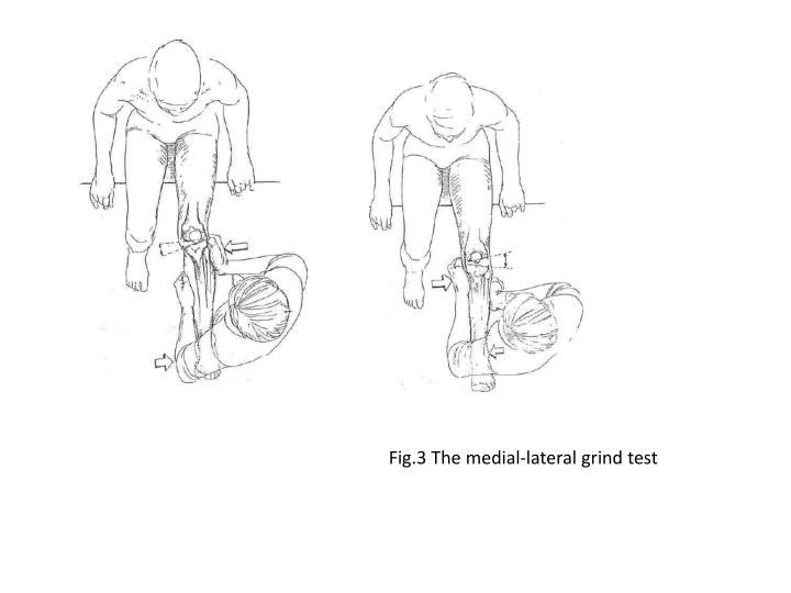 Fig.3 The medial-lateral grind test