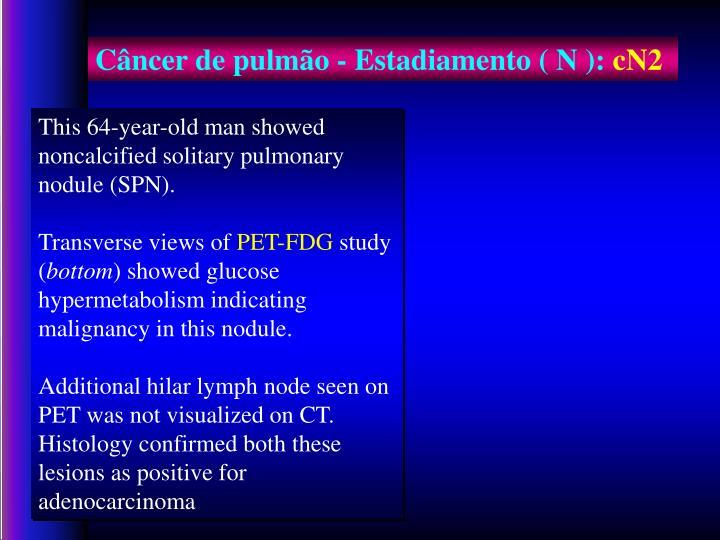 Câncer de pulmão - Estadiamento ( N ):