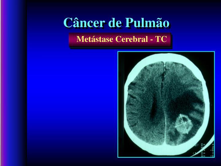 Metástase Cerebral - TC