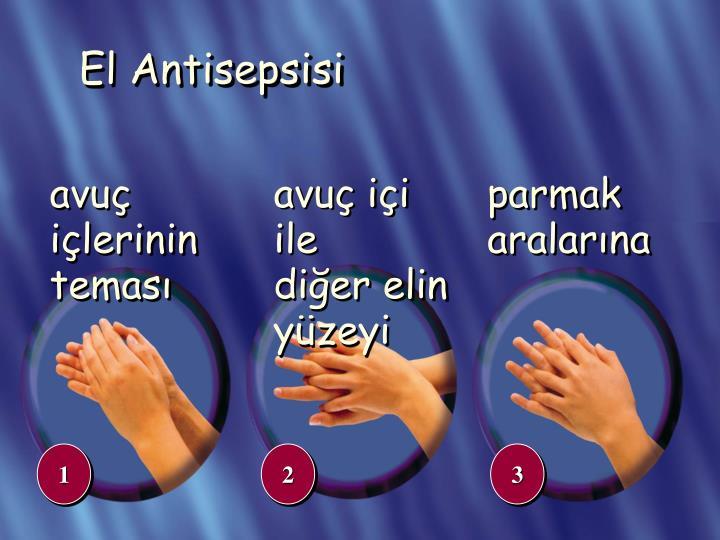 El Antisepsisi