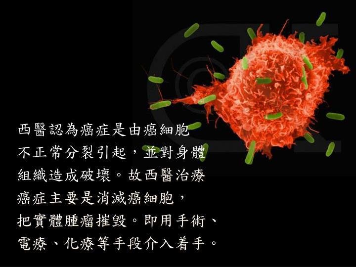 西醫認為癌症是由癌細胞