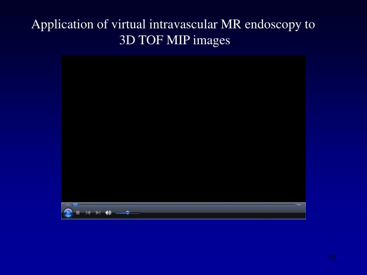 Application of virtual intravascular MR endoscopy to
