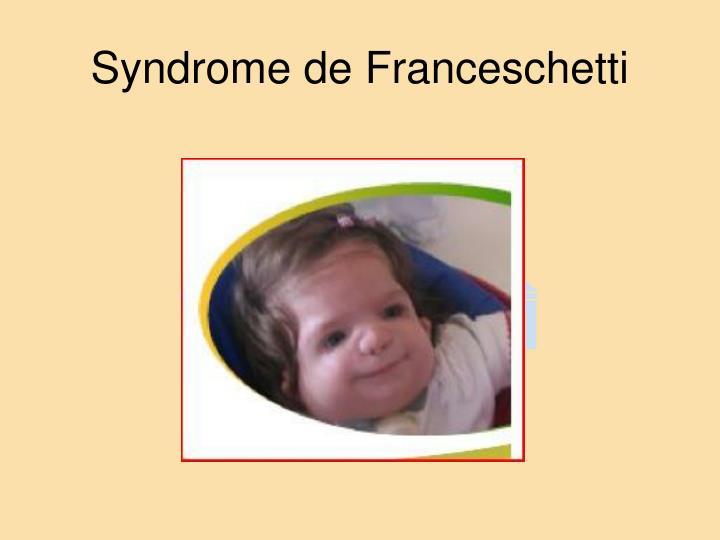 Syndrome de Franceschetti