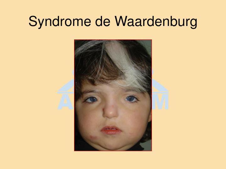 Syndrome de Waardenburg