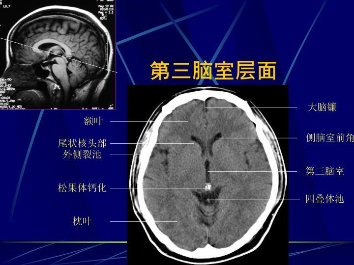 第三脑室层面