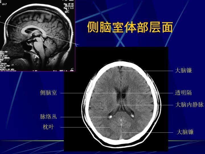 侧脑室体部层面