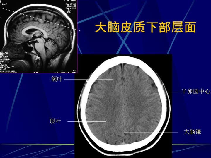 大脑皮质下部层面