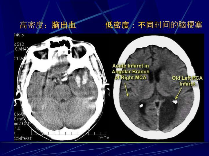 低密度:不同时间的脑梗塞