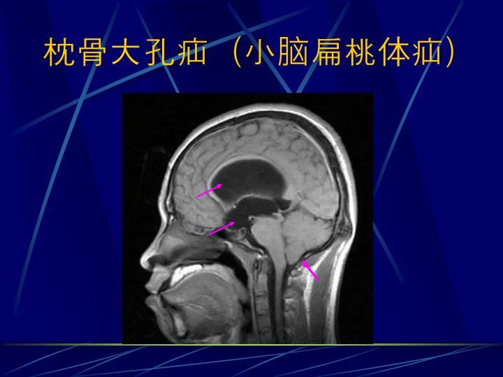 枕骨大孔疝(小脑扁桃体疝)
