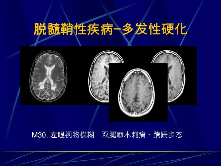 脱髓鞘性疾病