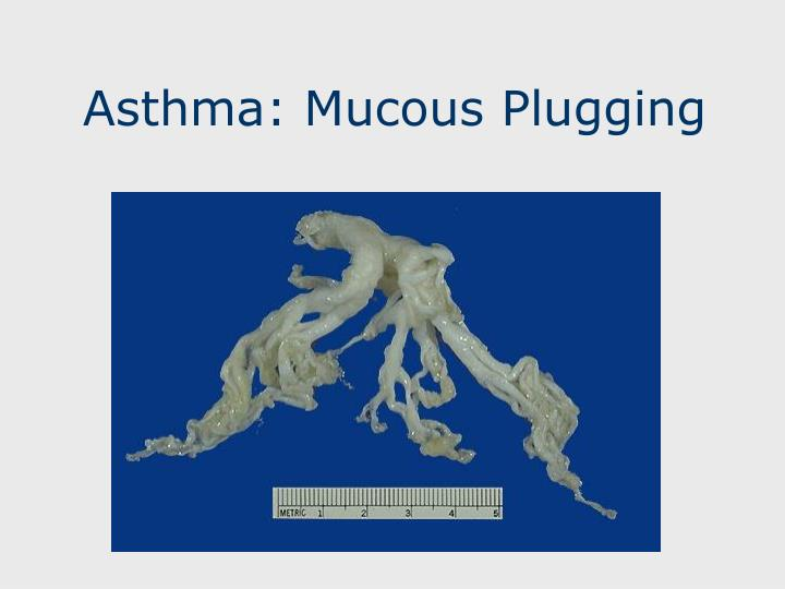 Asthma: Mucous Plugging