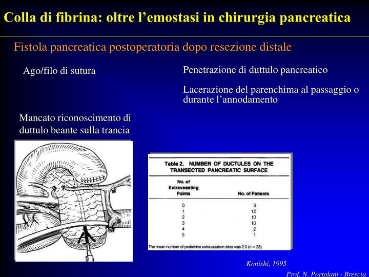 Colla di fibrina: oltre l'emostasi in chirurgia pancreatica