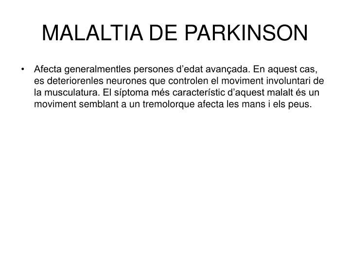 MALALTIA DE PARKINSON