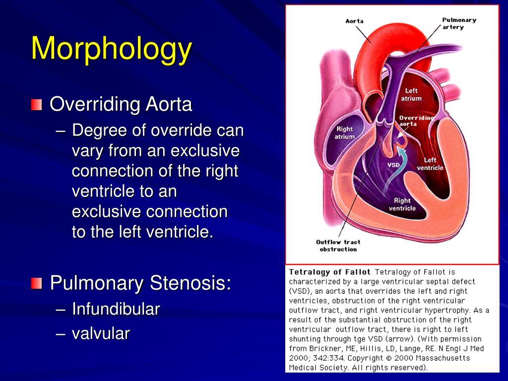 Ppt Congenital Heart Diseases Ii Powerpoint Presentation Free