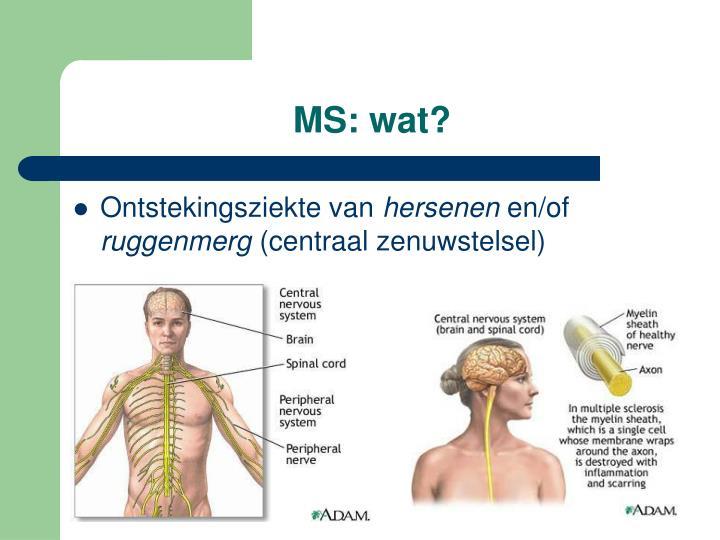 Ms wat