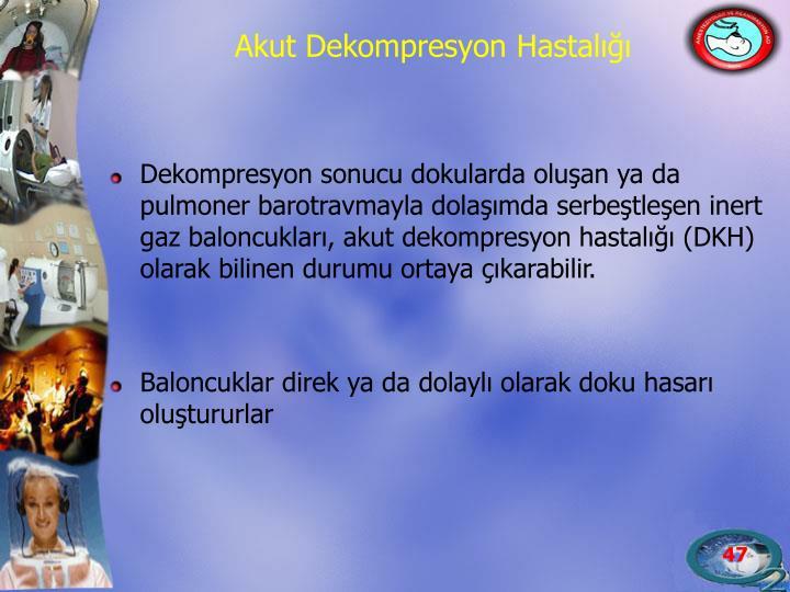 Dekompresyon sonucu dokularda oluşan ya da pulmoner barotravmayla dolaşımda serbeştleşen inert gaz baloncukları, akut dekompresyon hastalığı (DKH) olarak bilinen durumu ortaya çıkarabilir.