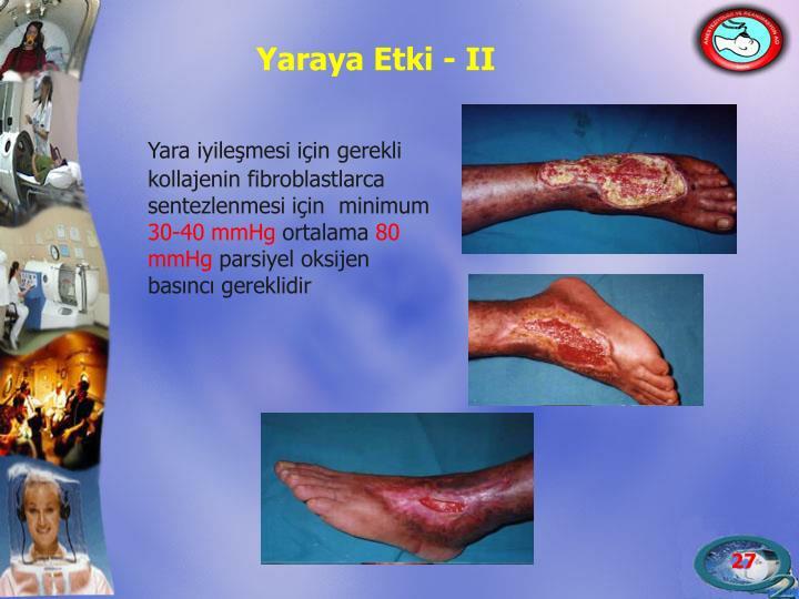 Yaraya Etki - II