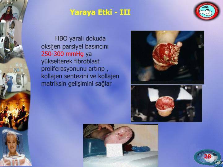 Yaraya Etki - III