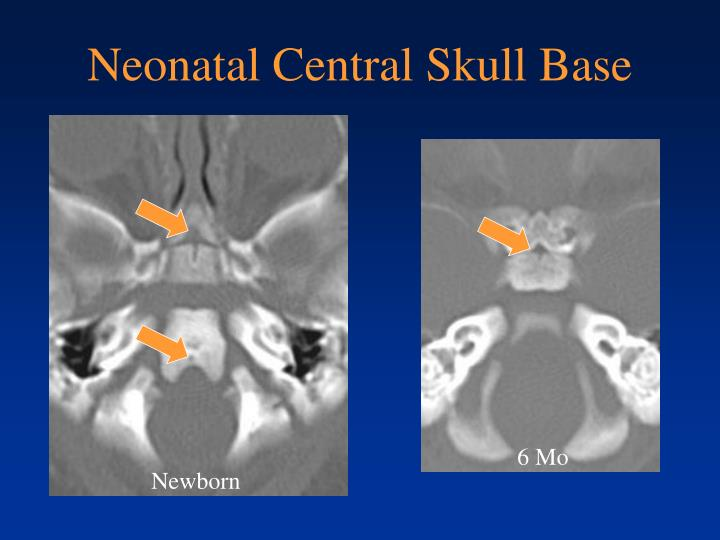 Neonatal Central Skull Base