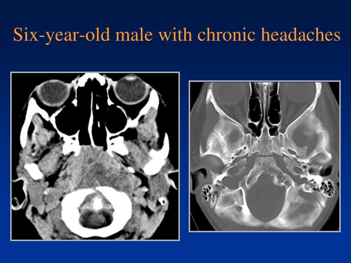 Six-year-old male with chronic headaches