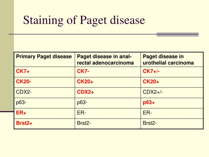 Staining of Paget disease