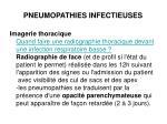 pneumopathies infectieuses2