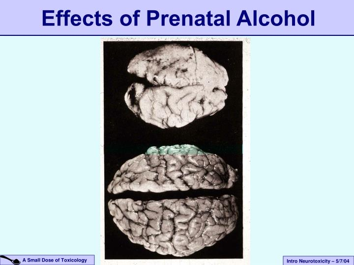 Effects of Prenatal Alcohol