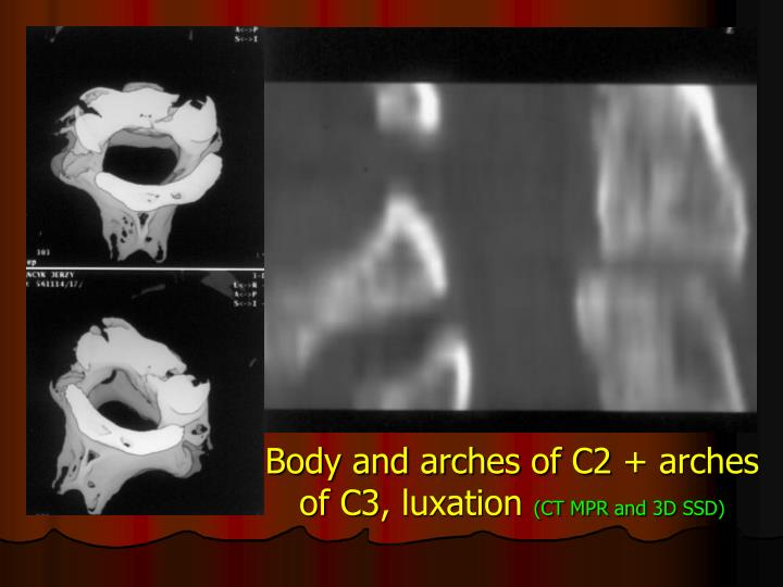 Body and arches of C2 + arches of C3, luxation