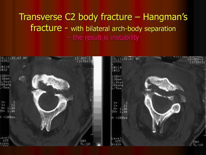 Transverse C2 body fracture – Hangman's fracture -