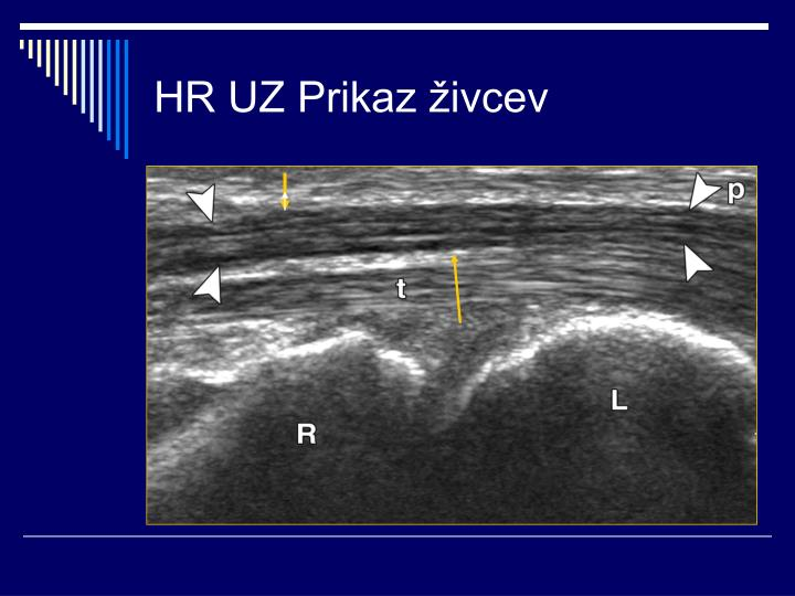 HR UZ Prikaz živcev