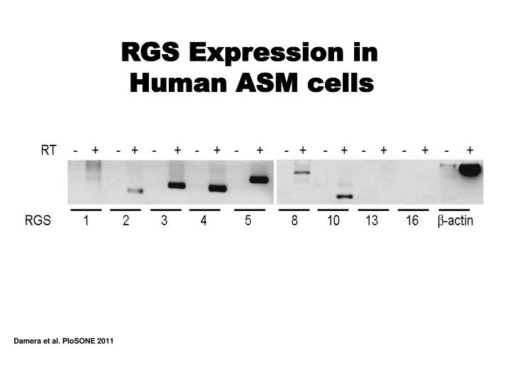 RGS Expression in