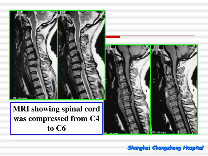 MRI showing spinal cord was compressed from C4 to C6