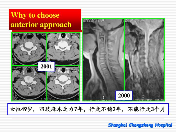 Why to choose anterior approach
