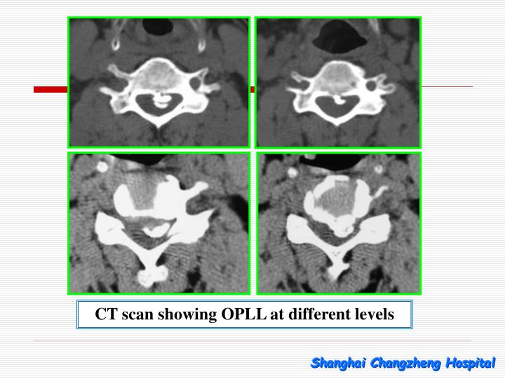 CT scan showing OPLL at different levels