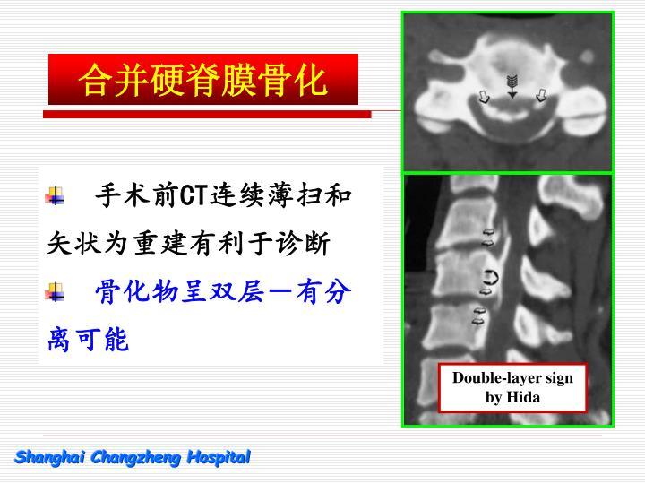 合并硬脊膜骨化