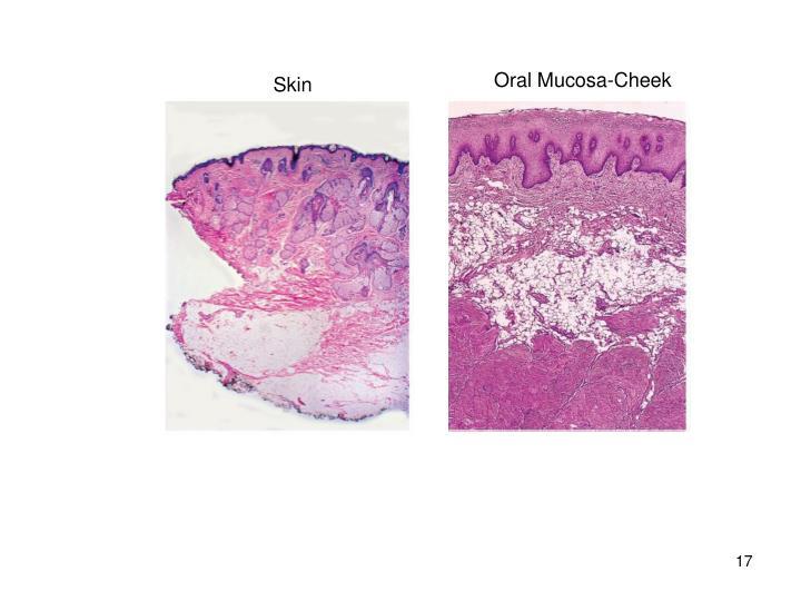 Oral Mucosa-Cheek