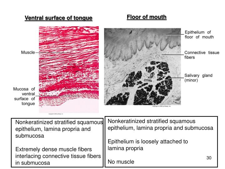 Floor of mouth