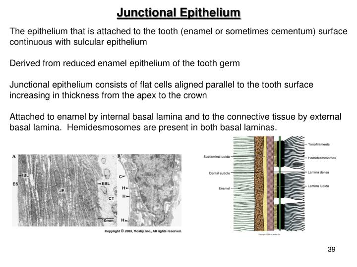 Junctional Epithelium