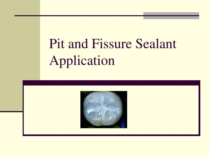 pit and fissure sealant application n.